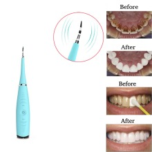 Sonic Dental Scaler Electric Tooth Stains Tartar Calculus Remover